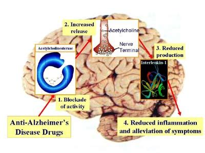 Research Paper On Alzheimers Disease